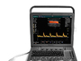 аппарат УЗИ SonoScape S8Exp